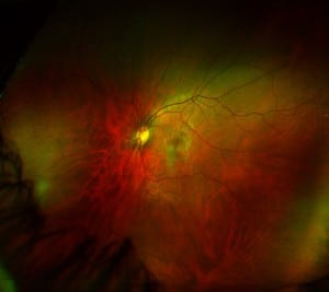 optometry retina